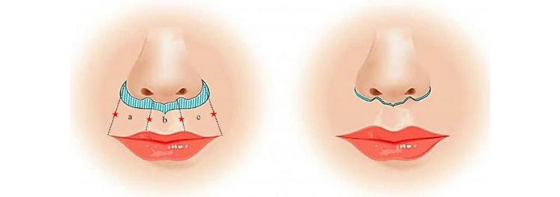 Результаты операции булхорн: фото до и после проведения