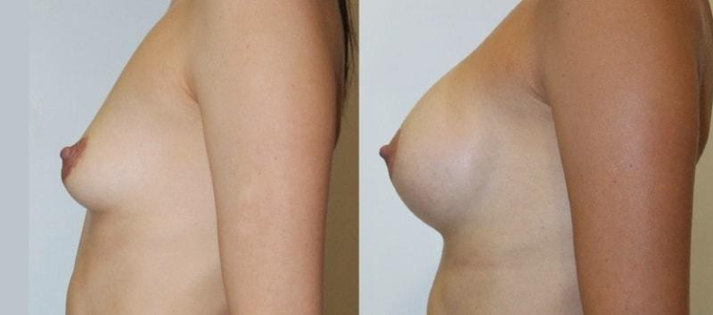 Какие виды грудных имплантов самые лучшие?