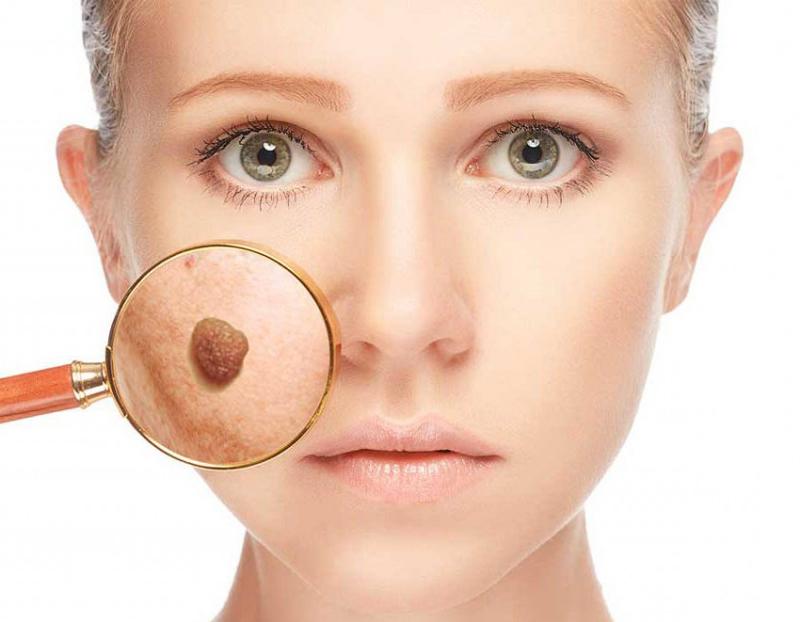 Удаление родинок на лице: последствия, отзывы пациентов