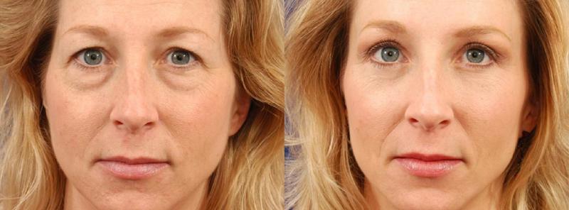 Блефаропластика фото до и после операции