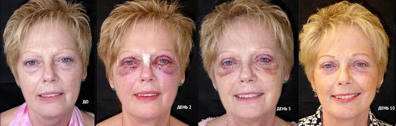 Липофилинг лица: фото до и после, реабилитация, стоимость операции