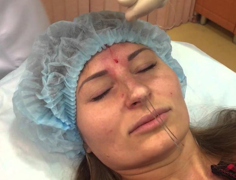 Ринопластика носа: особенности проведения и стоимость