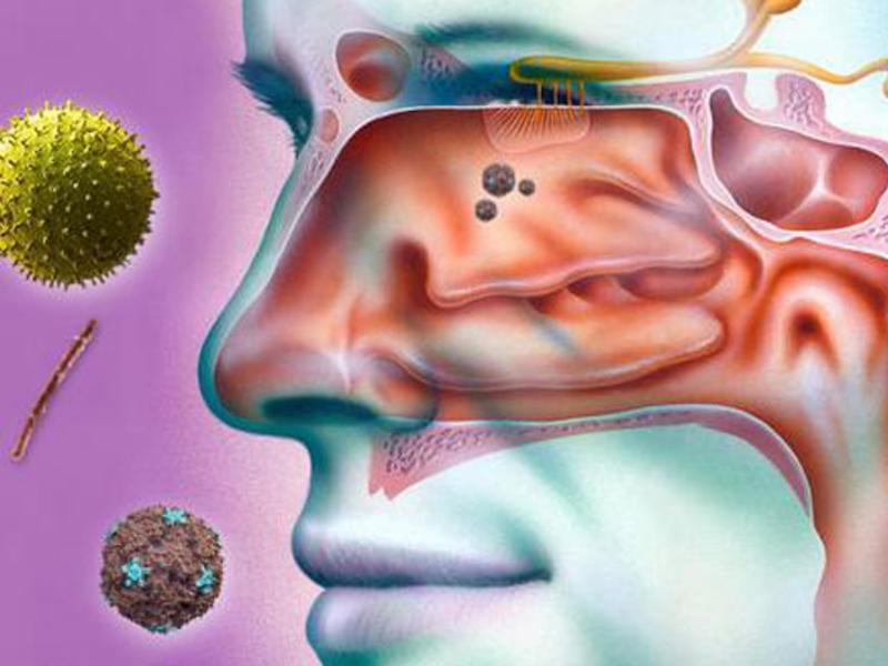 Как проводится вазотомия носовых раковин — отзывы после операции
